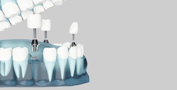 שתלים דנטליים לשיקום הפה